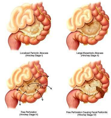 Diverticulos inflamados en el colon