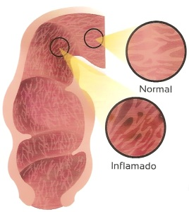 sindrome, intestino, irritable, inflamacion, sintomas